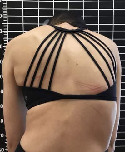 girls_back with scoliosis