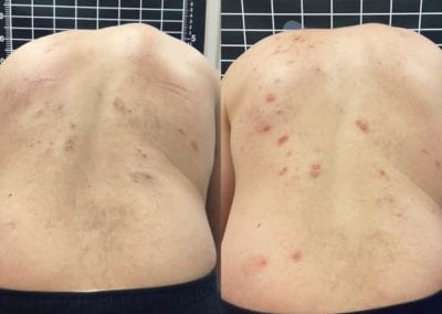 before and after example of scoliosis treatment by rita miller in boise idaho