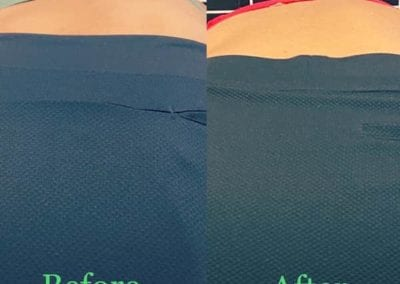 before and after example of scoliosis treatment in southern idaho