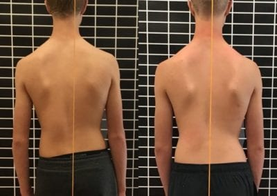 scoliosis treatment meridian idaho